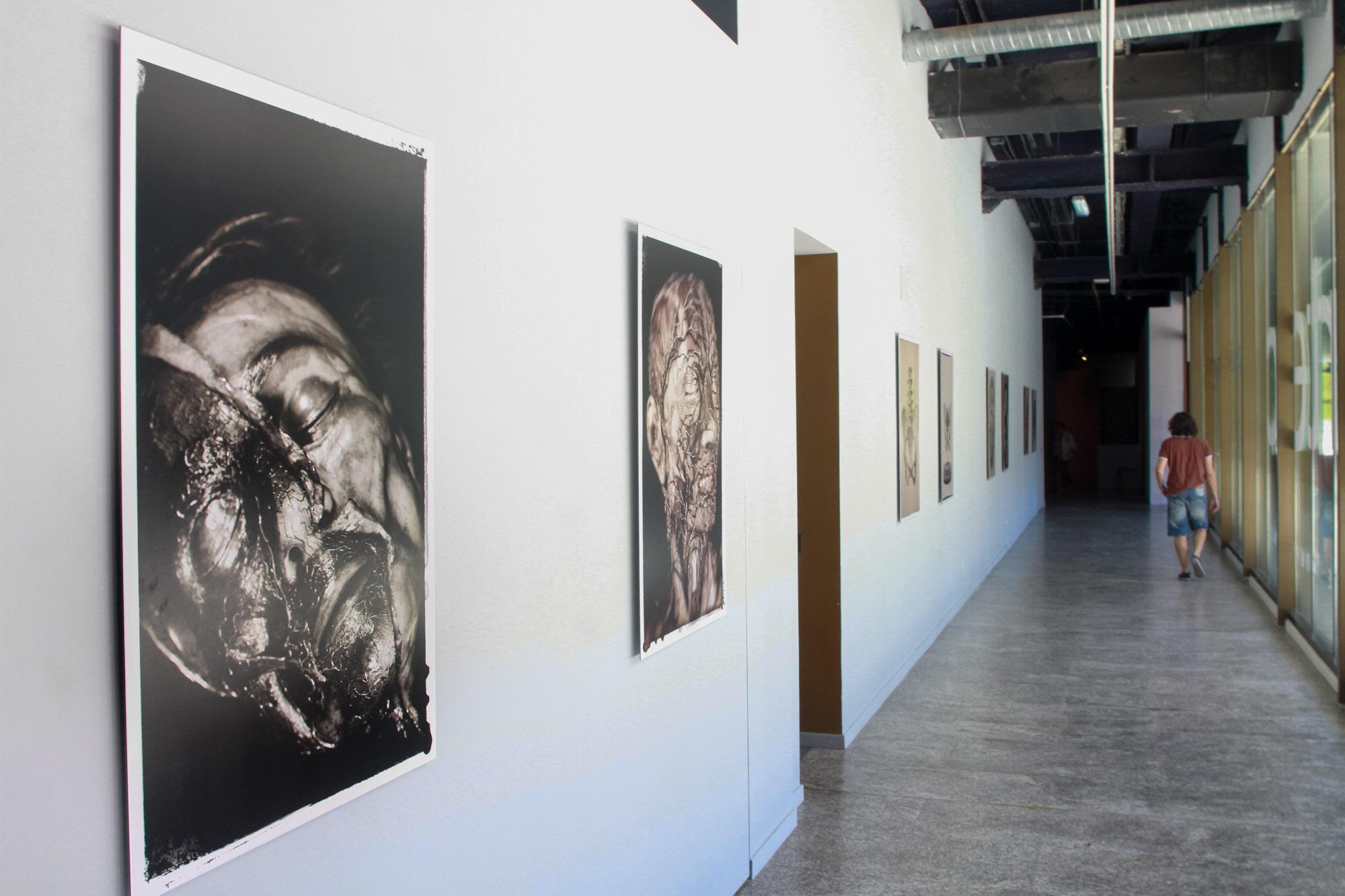 Galería Madridiario - Arte anatómico en la Complutense - Exposición ...