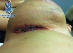 Una mujer ocultaba 1,7 kilos de cocaína en dos prótesis mamarias