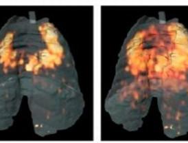 Investigan cómo mejorar el diagnóstico y tratamiento de la tuberculosis