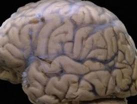 Detectan áreas dañadas al inicio del deterioro cognitivo