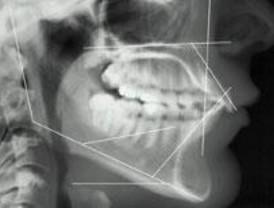 Cirugía virtual y robótica aplicada a la reconstrucción maxilofacial