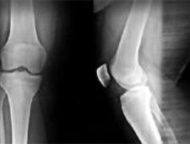 La Autónoma investiga métodos de recuperación de huesos y cartílagos