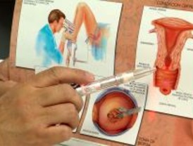40.000 mujeres serán informadas del cáncer de cérvix
