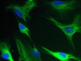 Una fuente inagotable de células para estimular la regeneración nerviosa
