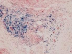 Nanopartículas magnéticas para tratar tumores
