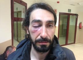 Kike Rincón, fotógrafo de Madridiario, herido en los disturbios