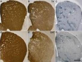 El éxtasis en ratones provoca una neurodegeneración similar a la del Parkinson