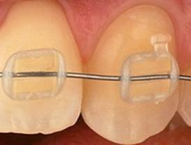 Nanopartículas para reforzar los 'brackets' transparentes de las ortodoncias