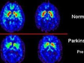 La ira en la enfermedad de Parkinson