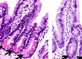Nuevo descubrimiento sobre las causas de la inflamación intestinal en la enfermedad de Crohn