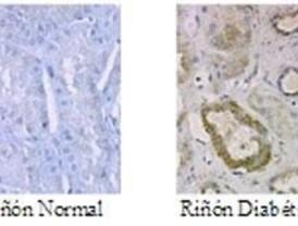 Descubren cómo afecta la glucosa al riñón