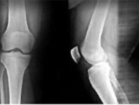 Investigan como implantar tejido óseo menos artificial