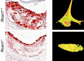 La inhibición de una proteína podría mejorar el tratamiento de la aterosclerosis