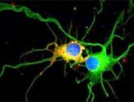Se descubren nuevos datos sobre el origen de la epilepsia de Lafora