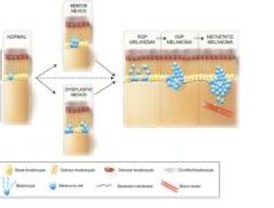 La genética del melanoma maligno