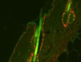 Nuevas tecnologías para identificar genes causantes del cáncer