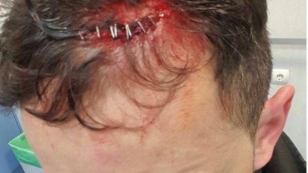 Ascienden a ocho los detenidos por una agresión masiva a 15 policías en Tetuán