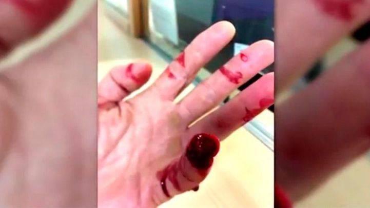 Un conductor arranca un dedo a un policía de un mordisco