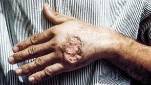 Sanidad lanza su campaña de prevención sobre la leishmaniasis con énfasis en la zona suroeste