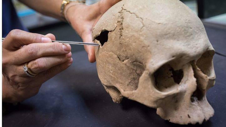 cráneo encontrado en un enterramiento de un convento.