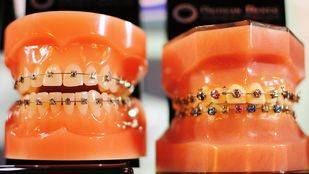 Ortodoncias en Expodental (archivo)