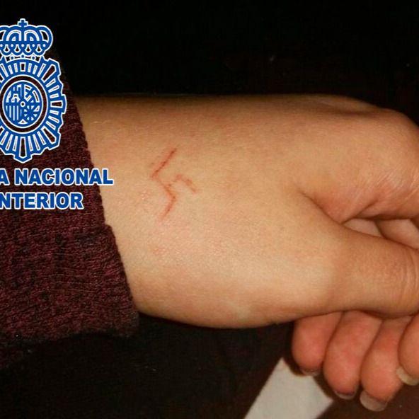 """Detenidos seis jóvenes por """"marcar"""" una esvástica en la mano de una menor"""