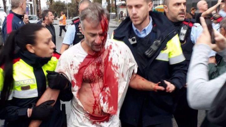 Las imágenes y los vídeos más brutales del referéndum en Cataluña