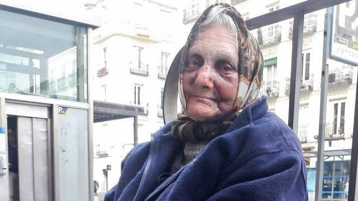 Anciana agredida cuando dormía en Chamberí.