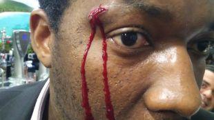 El actor Marius Makon, víctima de una agresión racista en un bar de Móstoles.