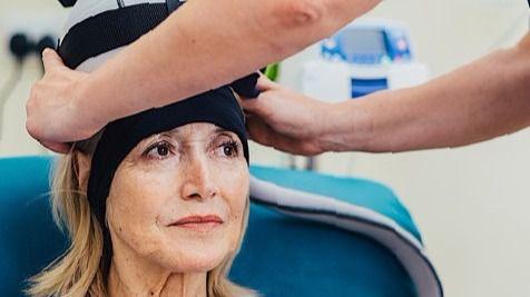 Un innovador tratamiento reduce la alopecia en pacientes con cáncer