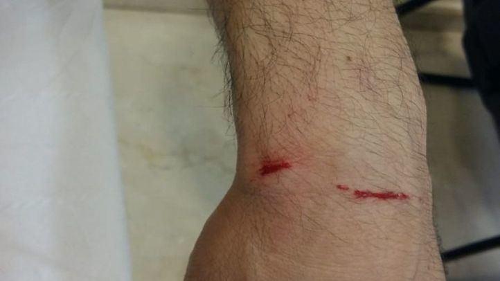 La víctima de la agresión homófoba sufrió heridas en el codo y la muñeca