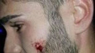 El joven sufrio cortes en la mejilla y la ceja y una luxación en el hombro.