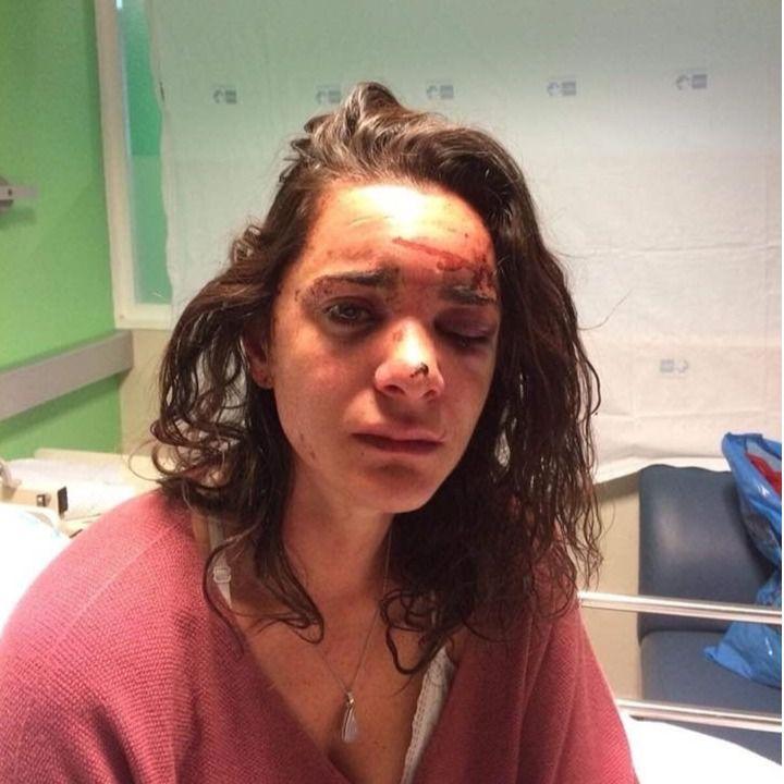 Una estudiante estadounidense, agredida y violada en Aluche