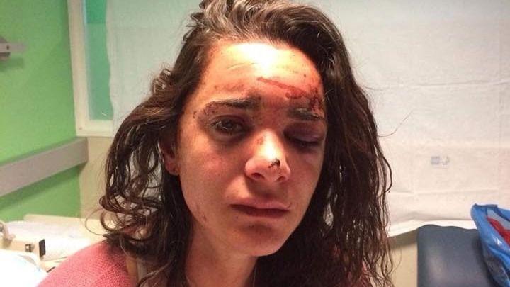 La joven ha publicado un duro relato de lo ocurrido en su cuenta de Facebook