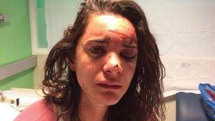 La joven ha publicado un duro relato de lo ocurrido en su cuenta de Facebook.