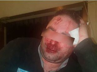 Identificados tres de los MENAS que agredieron a dos vigilantes del centro de Hortaleza