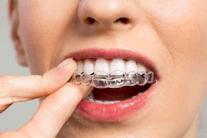 Seguro dental: por qué es tan importante contratar uno