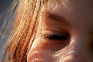 Cómo deshacerse de las manchas en la cara