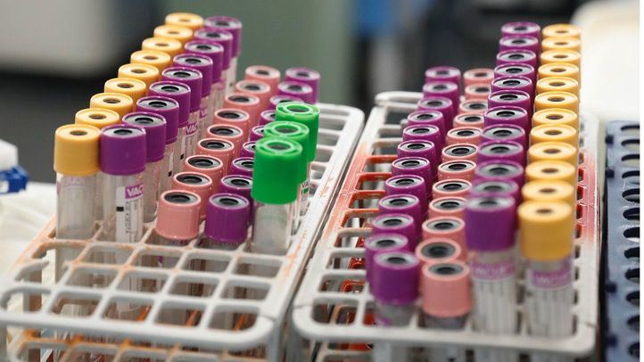 Los hospitales madrileños necesitan urgentemente sangre de los tipos 0+, 0- y A+