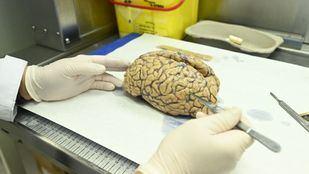 Uno de os cerebros donados al banco de tejido cerebral de la Fundación Cien.