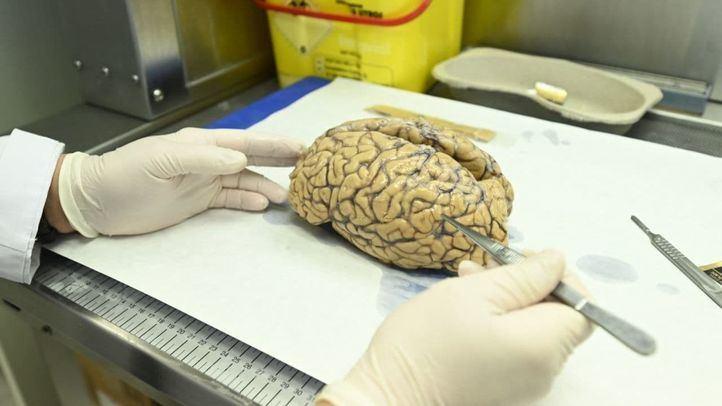 Un almacén de cerebros en Madrid: su donación, clave para la investigación