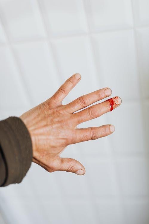 ¿Qué sabemos de la hemofilia?