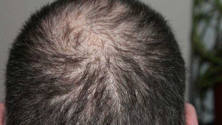Svenson lanza una campaña para combatir la alopecia