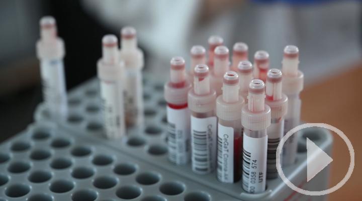 El Covid-19 rebasa los 21 millones de contagios a nivel mundial